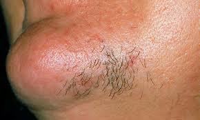 عوامل اصلی رویش مو در چانه زنان
