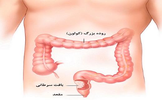 سرطان کولون چیست/ داروهای طبیعی برای کاهش وزن/ حذف پوسیدگی با نخ دندان/