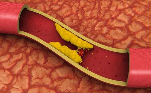 خاصیت ویژه جوش شیرین/ نشانه کم آبی بدن چیست؟/ مصرف پنیر برای چه افرادی مضر است/  ماده ای برای باز کردن عروق/ واکسنی جدید در درمان تومور سرطانی