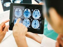 علائمی هشداردهنده که خبر از لخته شدن خون در مغز میدهند