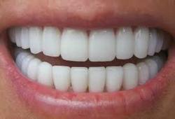 ۱۰ روش طبیعی برای سفیدکردن دندانها