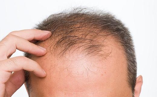 همه آنچه درباره ریزش موی مردان باید بدانید+ درمان/ مهمترین عواملی که زیبایی چهره را از آقایان میگیرد/ فریب شامپوها و لوسیونهای ضد ریزش مو را نخورید