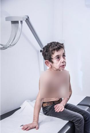 بیماری عجیب کودک سوری در لنز دوربین عکاس آلمانی جهان را تحت تاثیر قرار داد +عکس