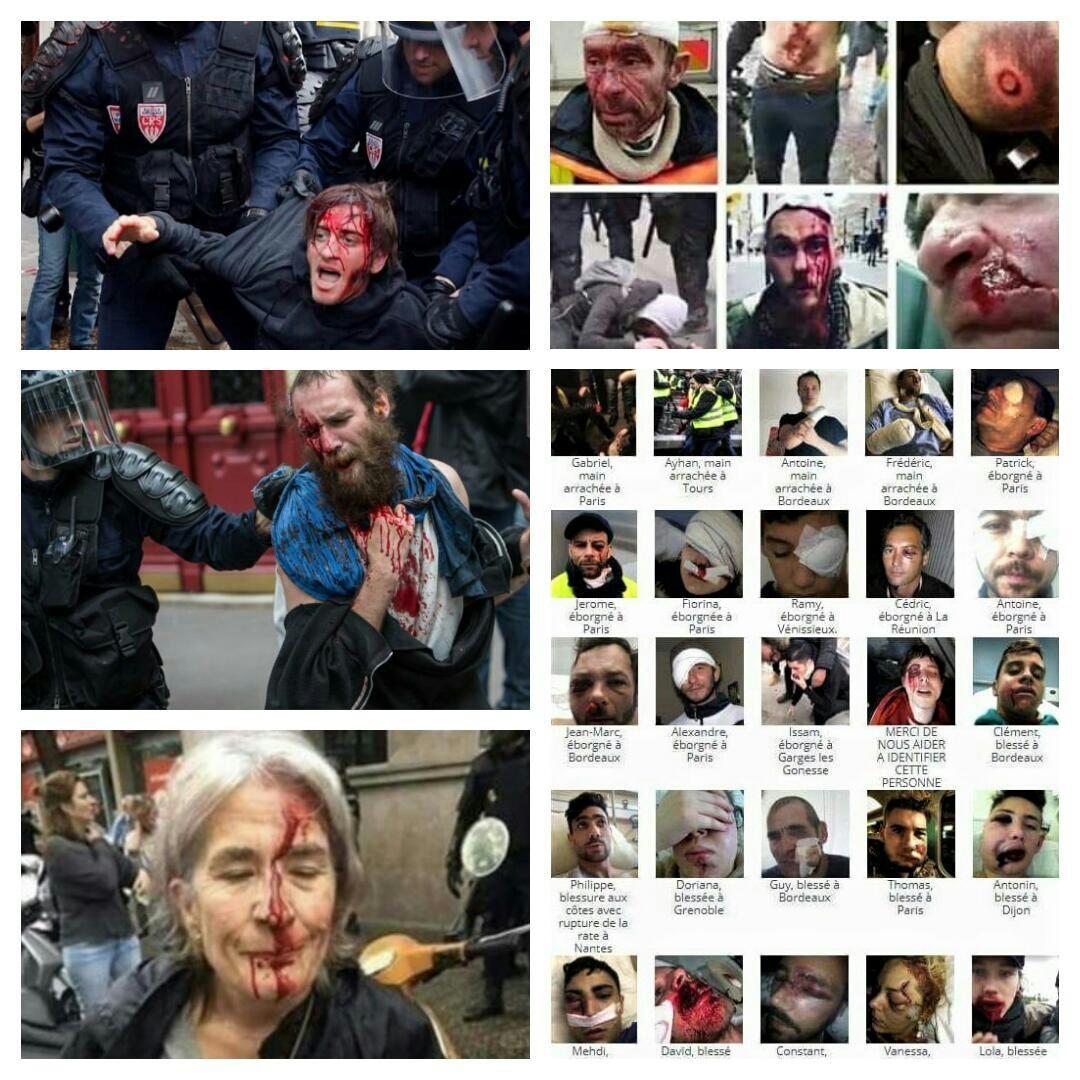 تصاویری که هیچگاه در رسانههای فرانسه نشان داده نشدند