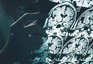 آیا آلزایمر با زوال عقل متفاوت است؟