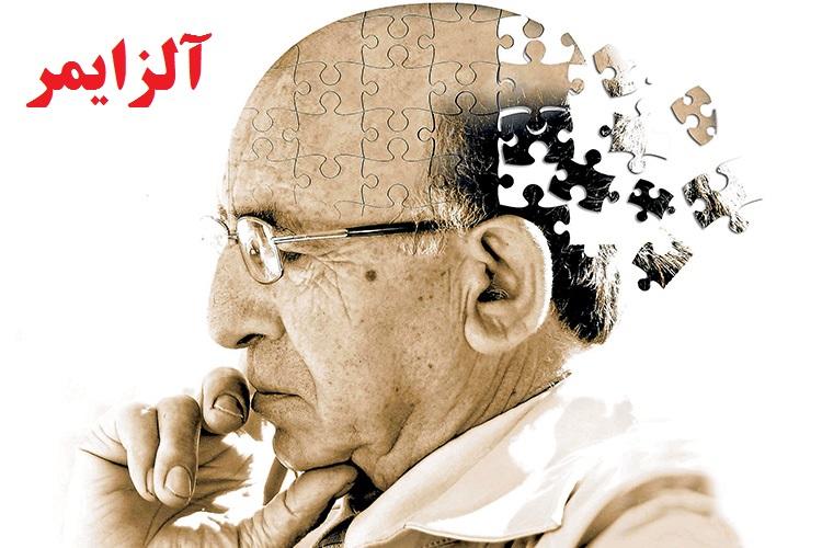 نشانههای هشدار دهنده بیماری آلزایمر را بشناسیم!