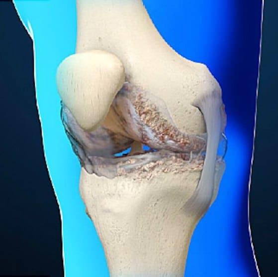 همه چیز درباره بیماریهای مفصلی/ چگونه از ایجاد آرتریت جلوگیری کنیم؟