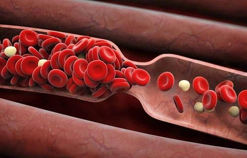 بیماریهای خونی؛ از سرطان خون میلوما چه میدانید؟