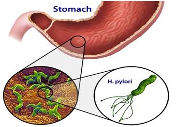 همه آنچه درباره زخم معده و دوازدهه باید بدانید+ رژیم غذایی و درمان