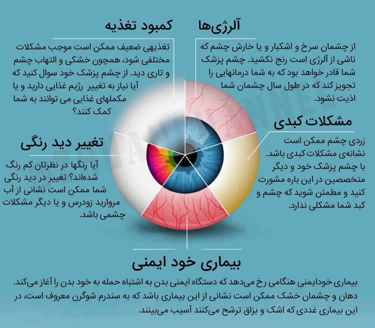 تغییر رنگ چشم نشان دهنده کمبود چه مواد غذایی است+ اینفوگرافی/// جمعه