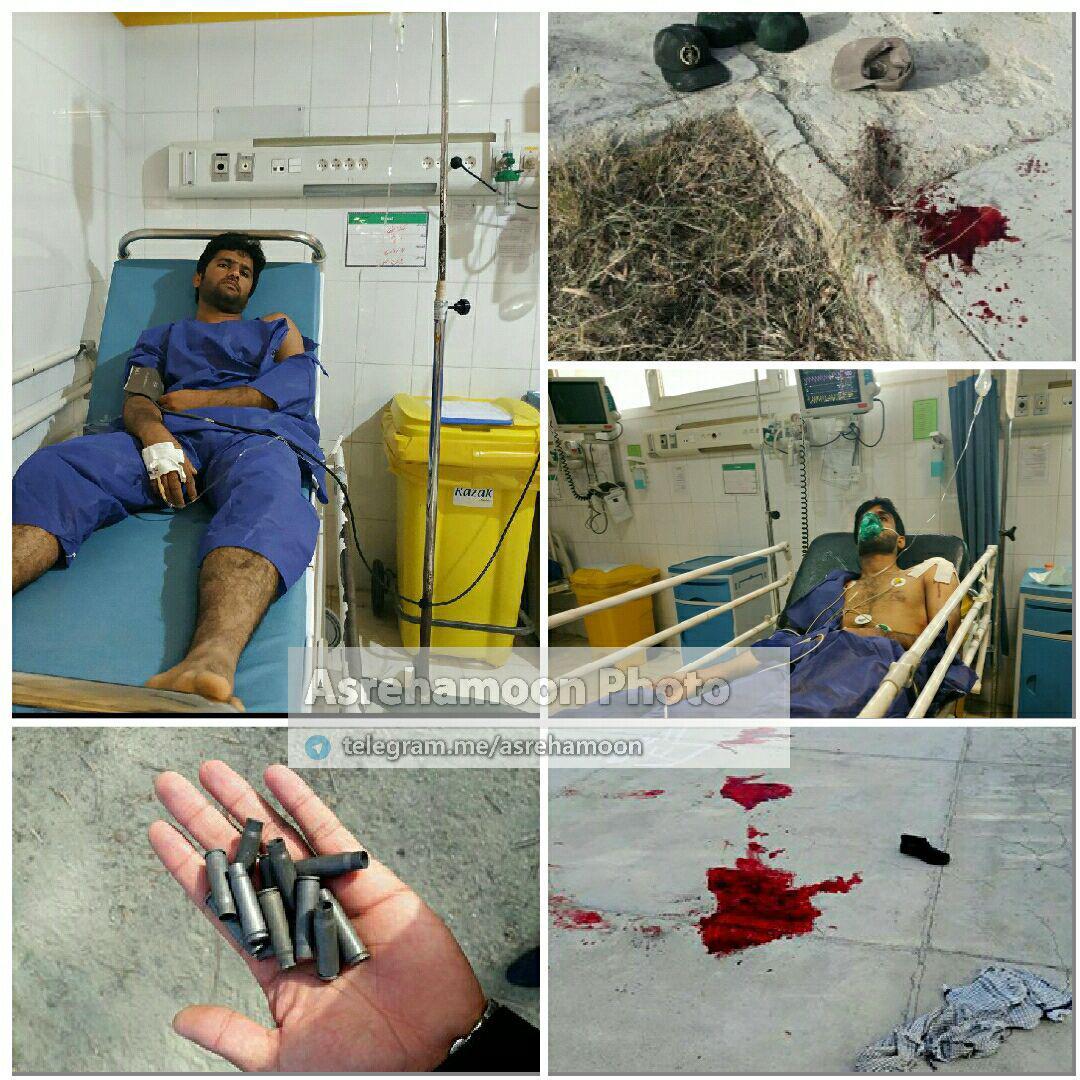 یکی از مصدومان حادثه تروریستی نیکشهر در بیمارستان +عکس