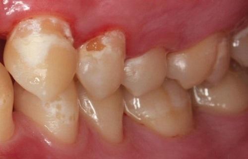 ۱۰ ماده غذایی که دندانهایتان را نابود میکند/ خرابکارهای خندانی که به دندان آسیب میرسانند