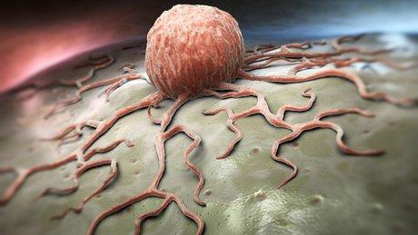 بیش از ۵ انجمن فعال در زمینه سرطان/ بیماران سرطانی نباید پس از درمان رها شوند