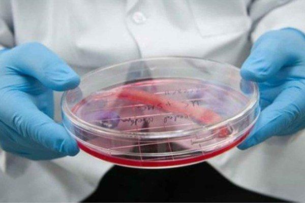 سلول درمانی به کمک بیماران ncl خواهد آمد/ بیماری که کودکان را هدف گرفته است