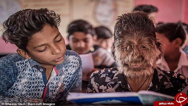 ماجرای حیرت آور پسر بچه گرگ نما در هند+تصاویر