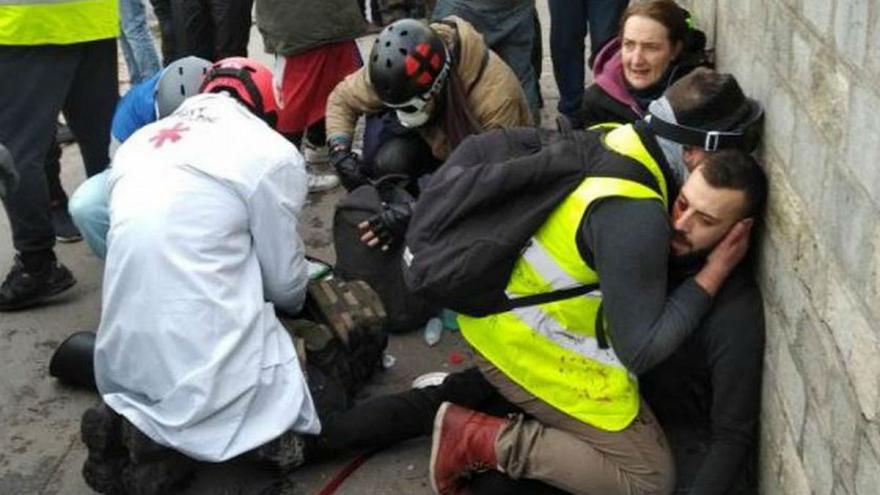 دست قطع شده جلیقهزرد فرانسوی گریبانگیر پلیس شد