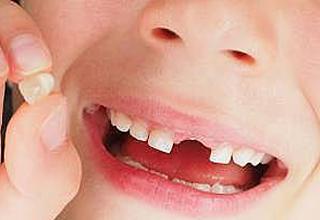 ارتباط عجیب میان دندان و مشکلات ذهنی آینده