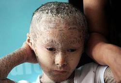 عجیبترین کودکان دنیا/ از بچهای با ۳۰۰ دندان تا پری دریای واقعی + تصاویر