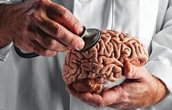 علائم هشداردهنده تومور مغزى؛ بیماری که جمجمهتان را پودر میکند