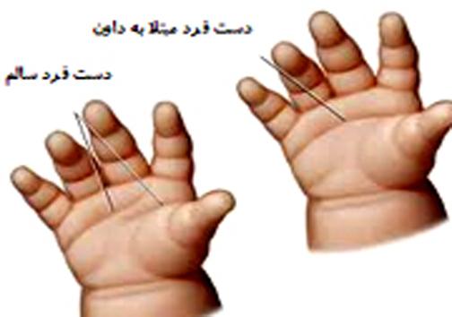غربالگری سندروم داون در شیراز