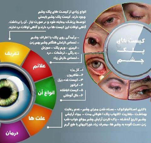علائم کیست پلک چشم چیست؟+ اینفوگرافی