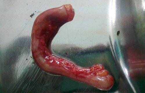 آپاندیسیت؛ بیماری بدون عارضهای که باید سریعا عمل شود