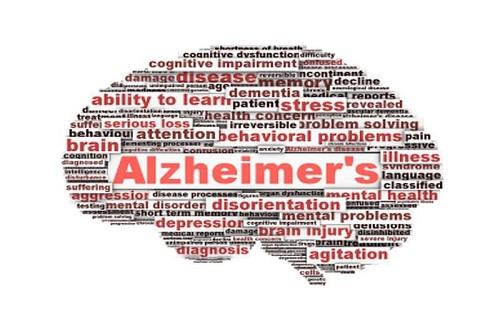 روشهای سازگاری با مشکلات ناشی از فراموشکاری/ توصیههای پیشگیری از آلزایمر