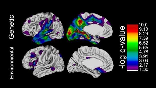 تاثیر عجیب ژنتیک بر مغز و میزان هوش!