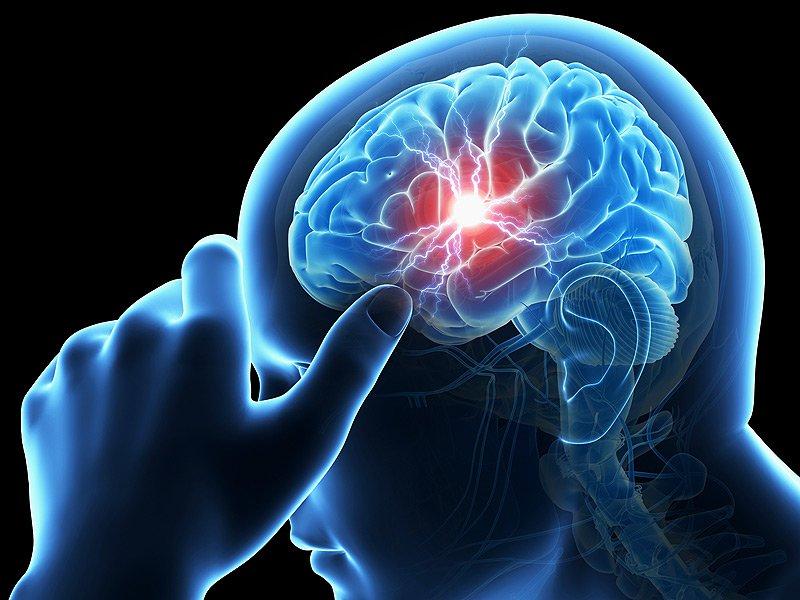 اهمیت زمان در بروز سکتههای مغزی/ همه باید علائم سکته مغزی را بشناسند