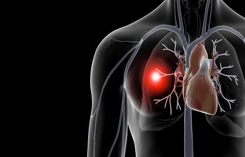 لختههای مرگ بار در کمین افراد کم تحرک/ از آمبولی ریه چه میدانید؟