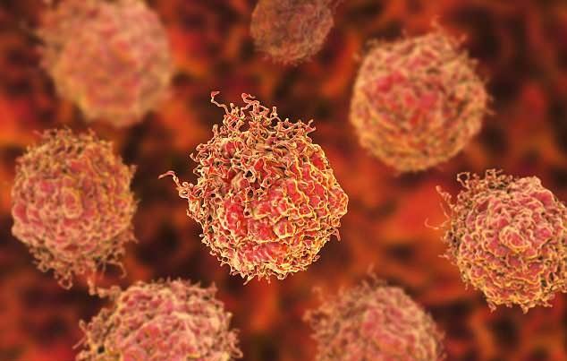 بیماری خطرناکی که جان مردان را تهدید میکند/ علت بزرگ شدن پروستات چیست؟