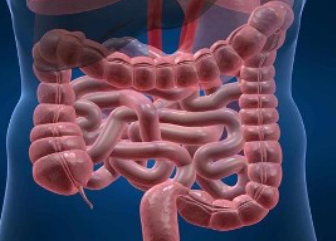 رژیم غذایی مخصوص کنترل و درمان بیماریها+ توصیههای تغذیهای برای مبتلایان به التهاب روده