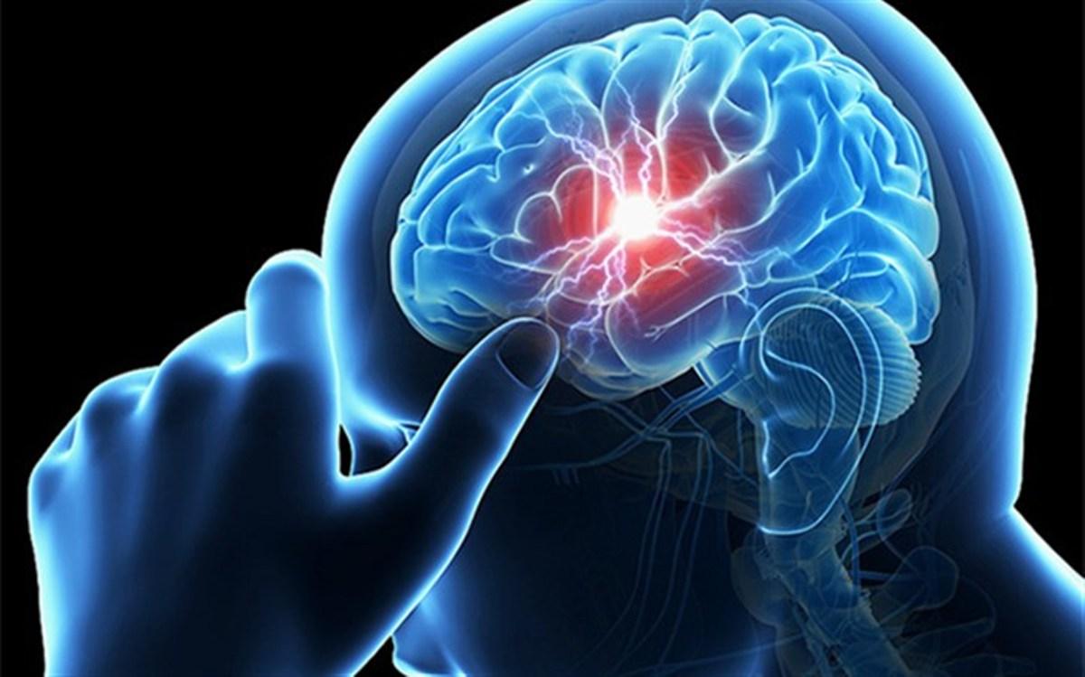 بیماریهای موثر بر بروز سکتههای مغزی/ تنها راه پیشگیری از سکته