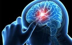 آشنایی با عوامل خطر سکته مغزی/ حواستان به فشار خونتان باشد