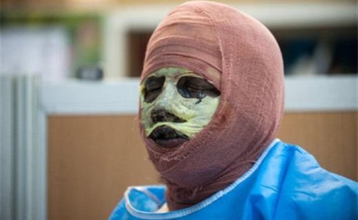 اقدامات اورژانسی در مواجهه با سوختگی مواد محترقه/ آیا پوست سوخته ترمیم میشود؟