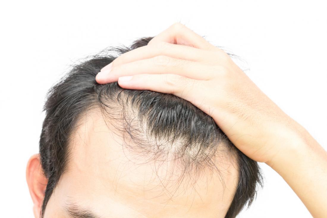 رعایت این نکات از ریزش موهای شما جلوگیری میکند