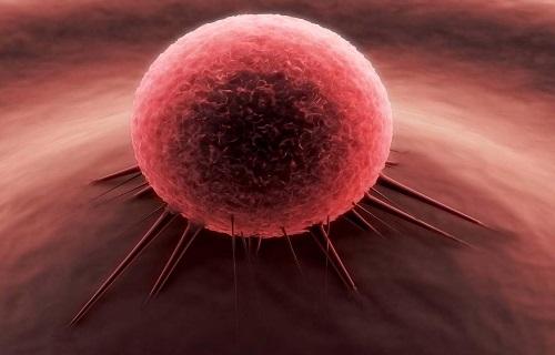 نشانههای پنهان سرطان کلیه/سرطانی موذی در بدن که قابل درمان است