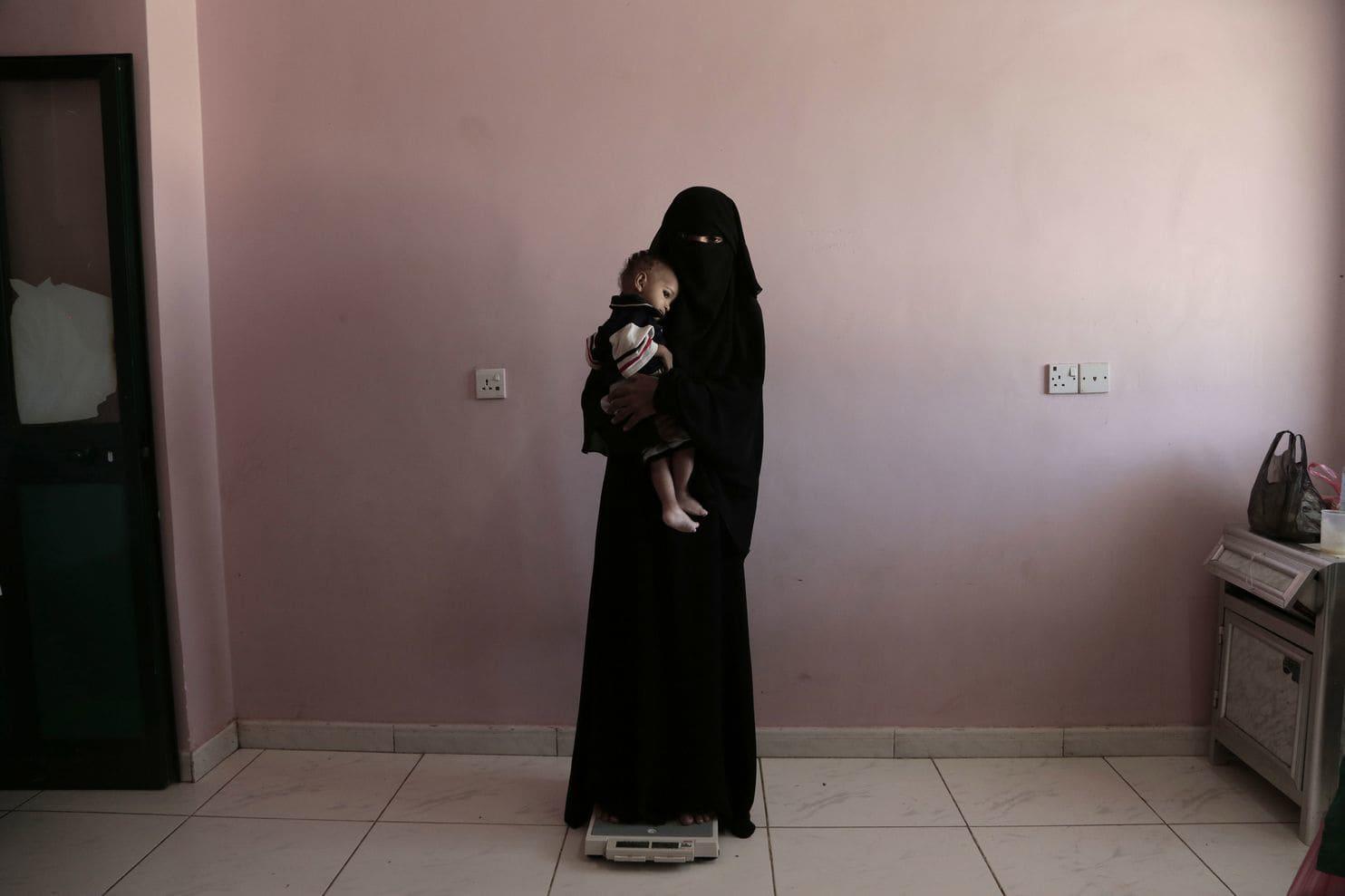 مادران یمنی برای نجات جان فرزندان خود از سهم غذایشان می گذرند