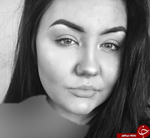 عاقبت وحشتناک دختر جوان پس از مصرف کرم برنزه کننده! +فیلم