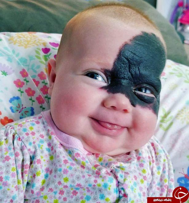 صورت عجیب نوزاد، والدینش را به وحشت انداخت! تصاویر