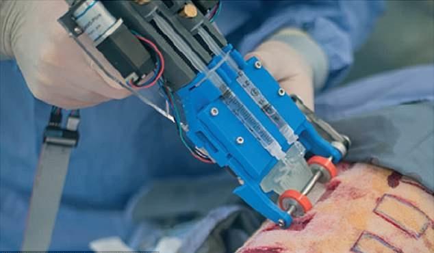 دستگاهی فوق العاده برای ترمیم زخمهای پوستی ساخته شد
