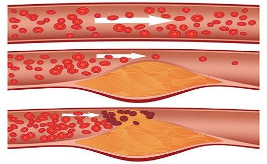 علائم آمبولی ریه/  بهترین راه برای فرار از کمردرد/ در کدام افراد شل پوست بیشتر رخ می دهد/
