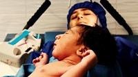 نجات جان ۷۰۰ مادر باردار پرخطر در بیمارستان قائم(عج) مشهد