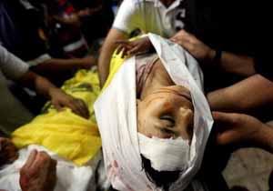 آمار یونیسف از شمار کودکان زخمی در غزه