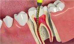هرآنچه باید درخصوص عصبکشی دندانها بدانید