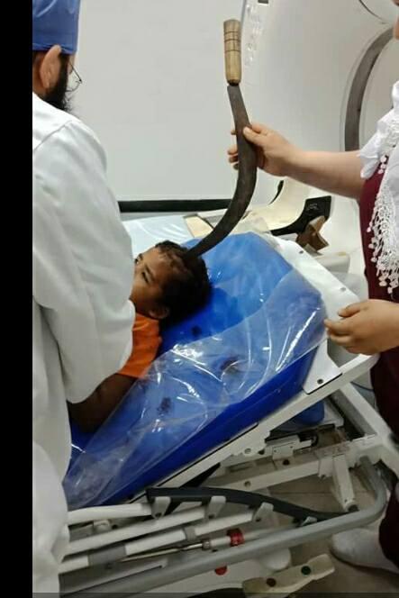 صحنه دردناک فرو رفتن داس در سر کودک + تصاویر