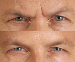 راهکارهایی فوق العاده برای رفع خط لبخند و چروک پیشانی