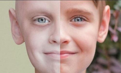 ///////////////////خطر ابتلا به سرطان درکودکانی که والدین وسواسی دارند///////////////وقتی ناخودآگاه وسواس والدین باعث سرطان نوزادان میشود/////////////////وقتی والدین وسواسی کودکان خود را سرطانی میکنند///////////خطری جدی درانتظارکودکان خانوادههای میلیاردر