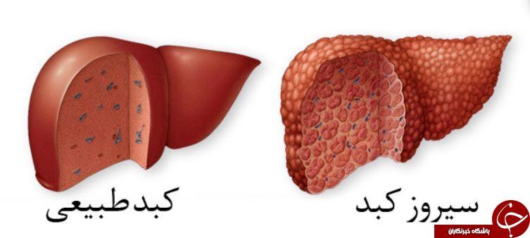 بیماری سیروز کبدی چیست و چه درمانی دارد؟