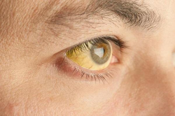 لکههای زرد چشم نشانه چیست؟